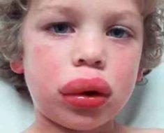 Причины возникновения и лечение крапивницы у детей