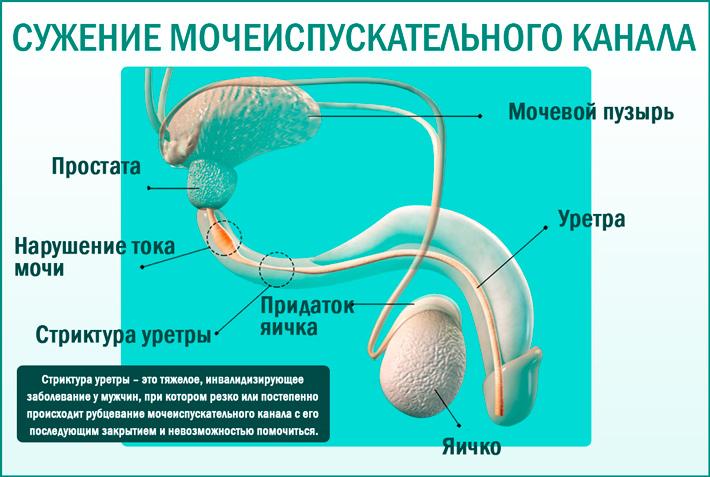 Стриктура уретры