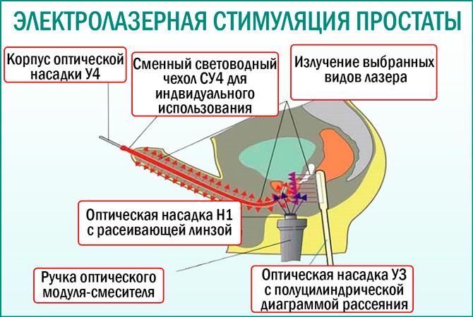 Лазерная терапия простаты