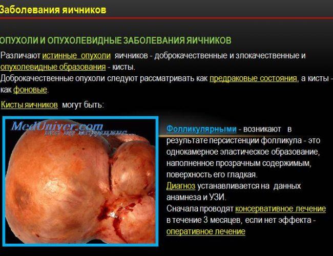 Опухоль яичника