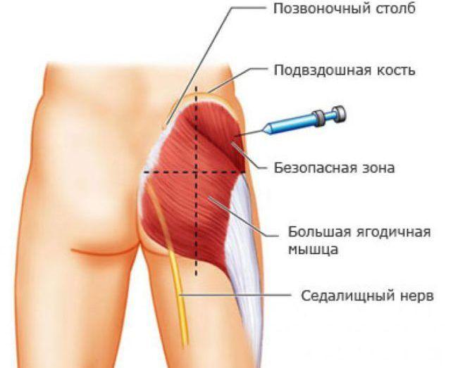 Инъекции в область ягодичной мышцы