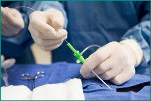 Амилоидоз почек: pектальная биопсия