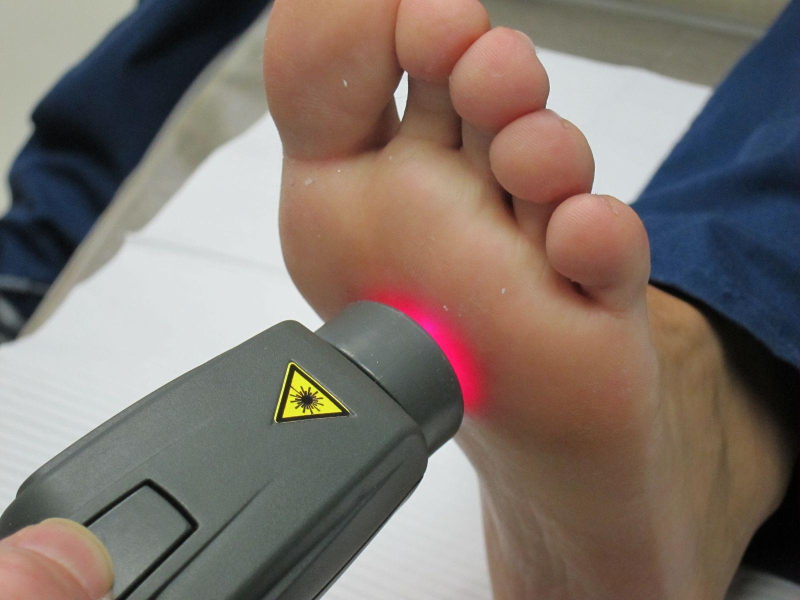 Почему лучше удалять папилломы лазером
