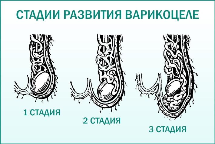 Варикацеле: стадии развития