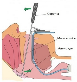 удаление аденоидов хирургическим путем