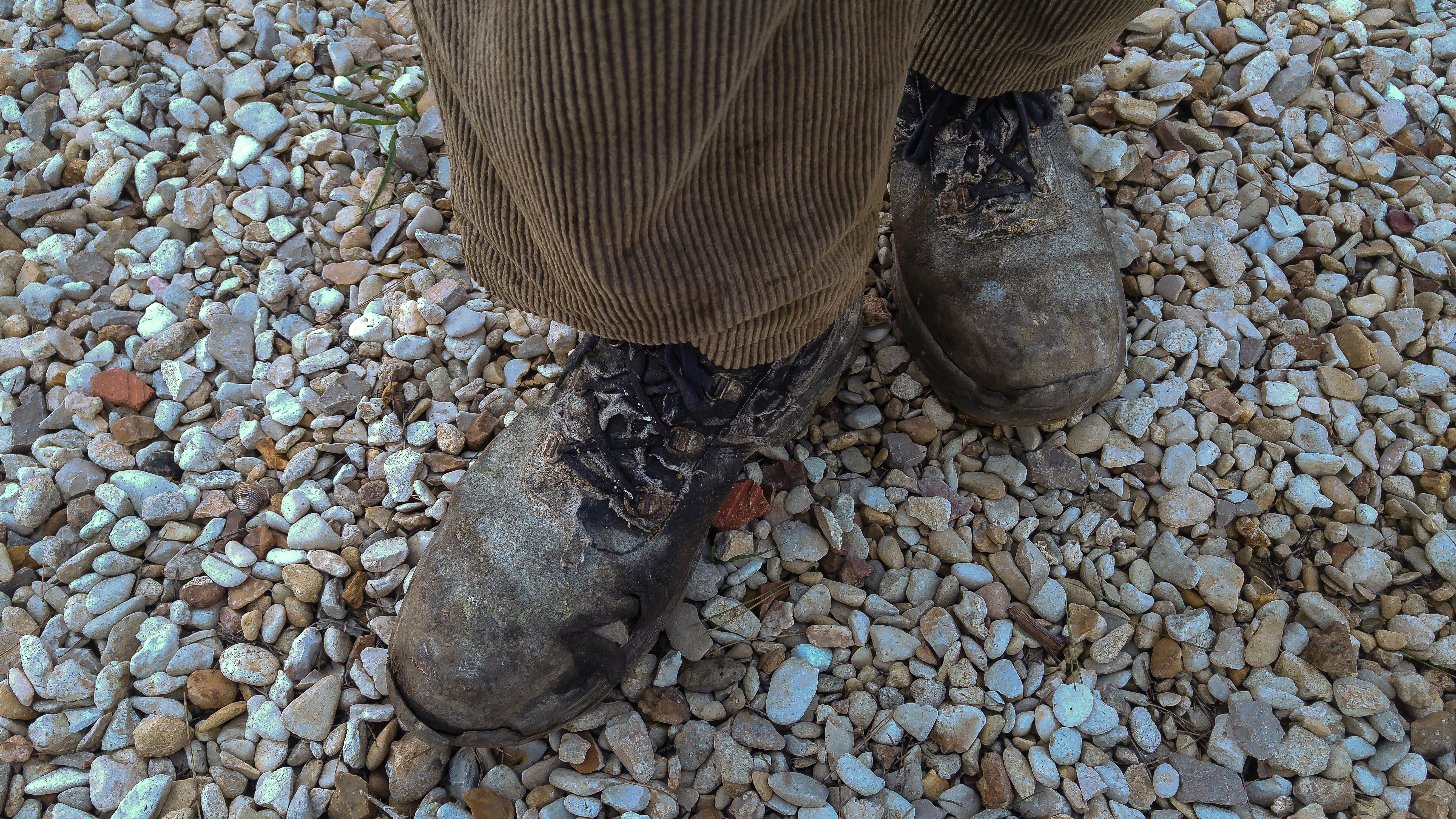 Какие причины появления папилломы на ноге?