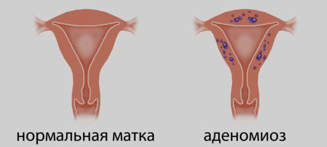 Аденомиоз
