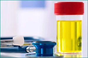 Какие заболевания можно определить по анализу мочи