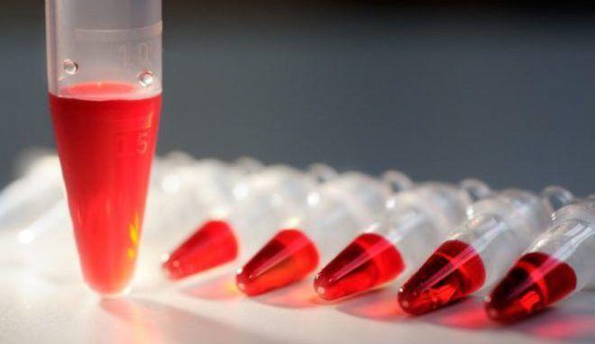 Колебания пролактина в крови у женщин