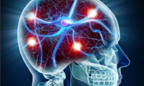 ВСД и гипертония