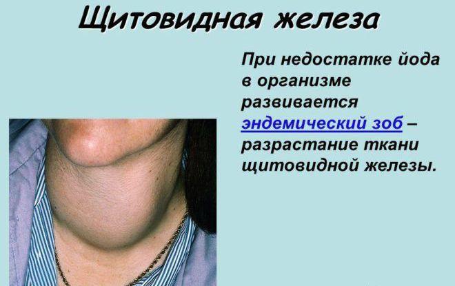 Ткани щитовидной железы