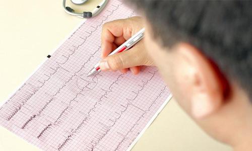врач расшифровка кардиограммы
