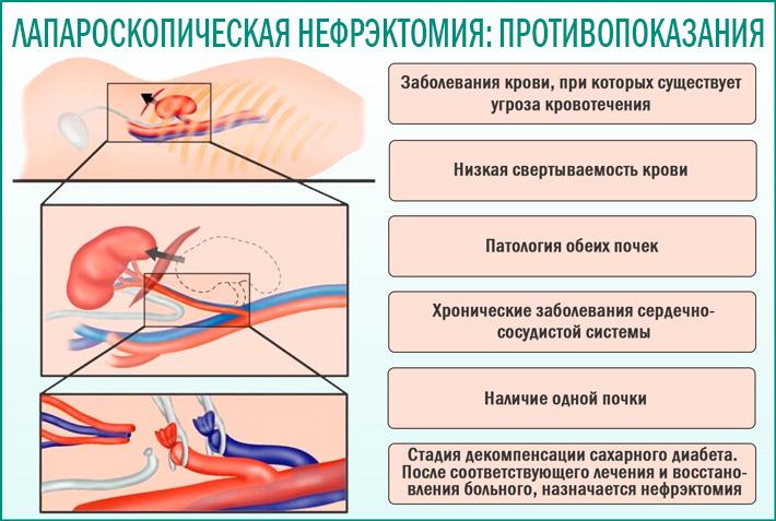 Противопоказания при лапароскопической нефрэктомии