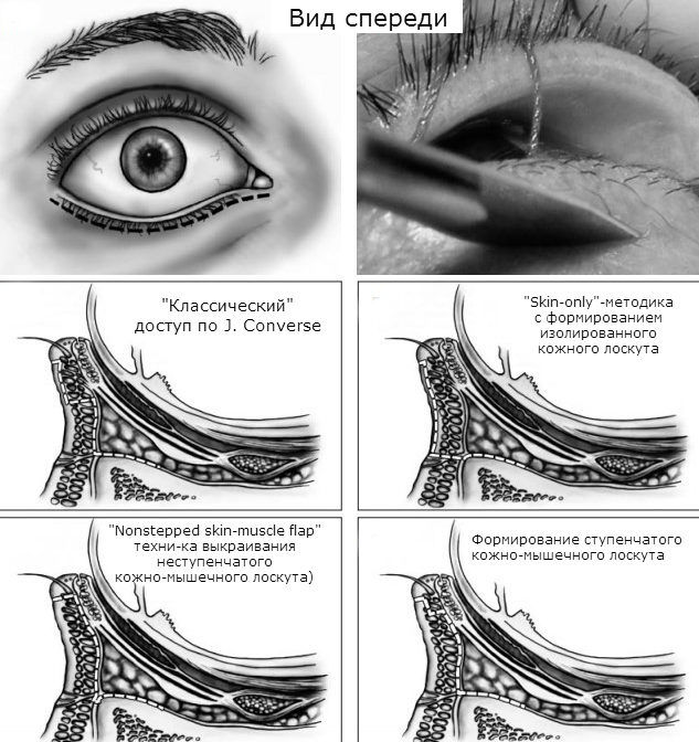Субцилиарные доступы к нижней стенке глазницы