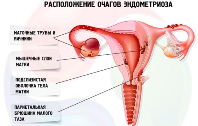 Расположение очагов при эндометриозе