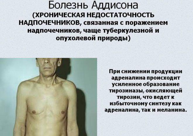Болезнь Аддисона, описание