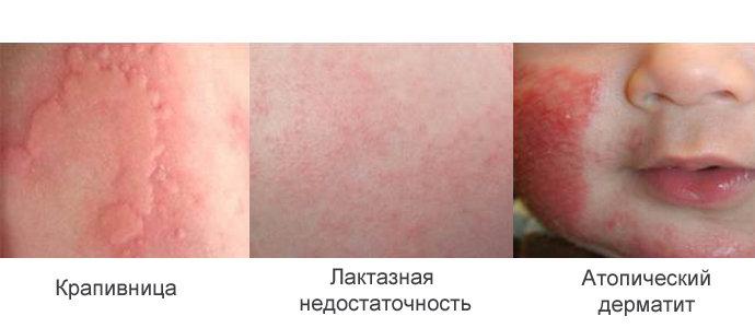 сыпь на лице у новорожденного на фоне аллергии