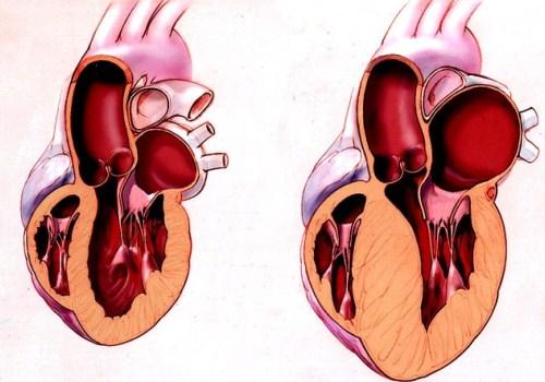 формы гипертрофии левого желудочка
