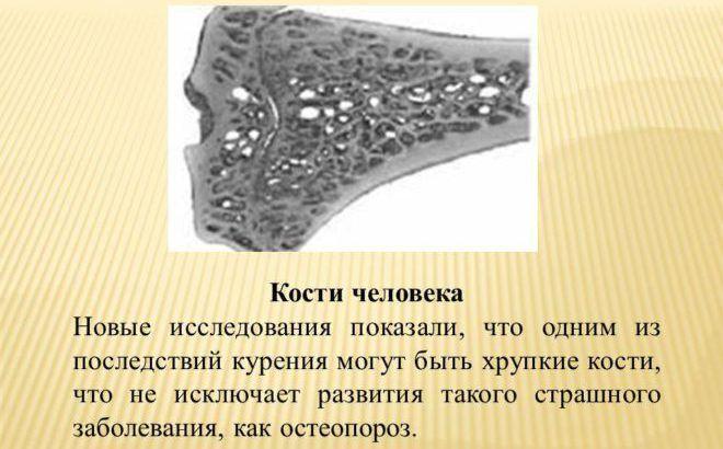 Хрупкие кости