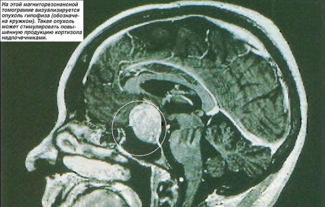 На магниторезонансной томограмме визуализируется опухоль гипофиза