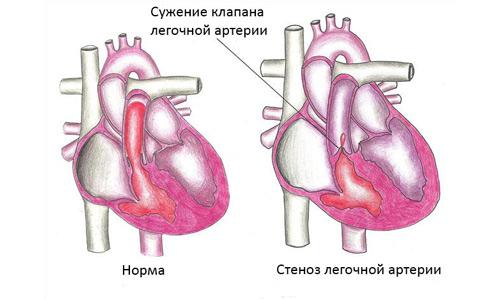 стеноз легочной артерии
