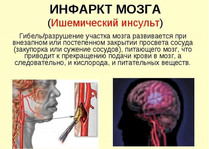 Инфаркт мозга или миокарда