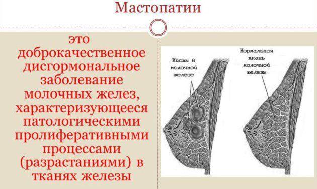 Классификация фиброзной мастопатии
